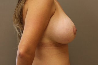 "33 year old female, 5'6"",140lbs., desires cosmetic improvement of breasts 1252726"