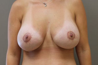 "33 year old female, 5'6"",140lbs., desires cosmetic improvement of breasts after 1252726"