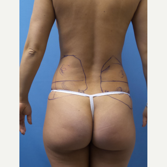 35-44 year old woman treated with Smart Lipo before 3098096