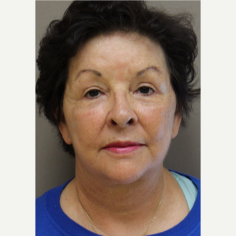 65-74 year old woman treated with Facelift after 3246277