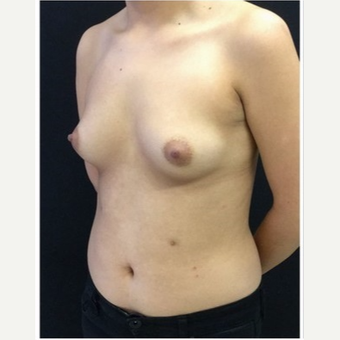 18-24 year old man treated with Breast Implants before 3103497