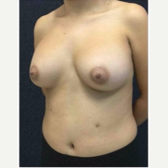 18-24 year old man treated with Breast Implants after 3103497