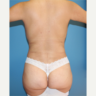 35-44 year old woman treated with Liposculpture after 3840021