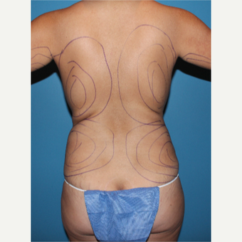 35-44 year old woman treated with Liposculpture before 3840021