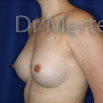 18-24 year old woman treated with Breast Augmentation after 3552662
