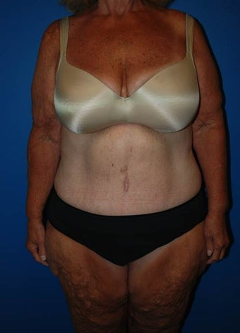 Cosmetic Tummy Tuck after 1181637