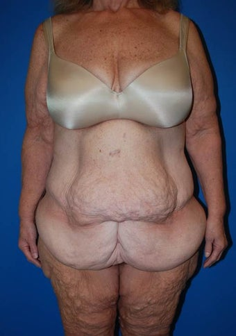 Cosmetic Tummy Tuck before 1181637