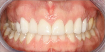 Closing Gap With Porcelain Veneers after 174633