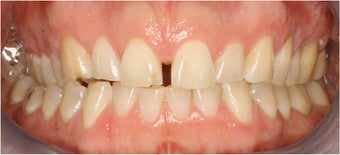 Closing Gap With Porcelain Veneers before 174633