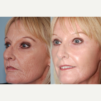 55-64 year old woman treated with Laser Resurfacing after 3415157