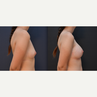 18-24 year old woman treated with Breast Augmentation before 3238835