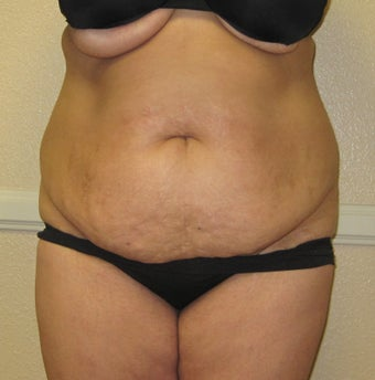Before and After Tummy Tuck before 1039443