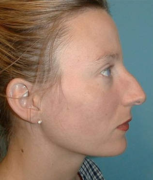 Rhinoplasty before 933483