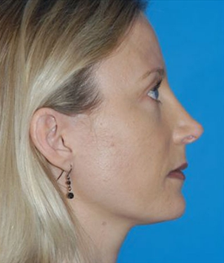 Rhinoplasty after 933483