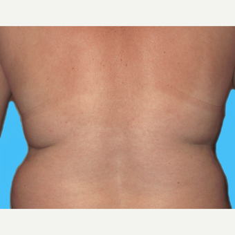 Liposuction before 3810494