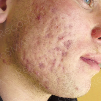 25  year old man  with post-acne scars treated with RecoSMA before 2974604