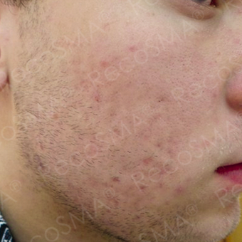 25  year old man  with post-acne scars treated with RecoSMA after 2974604