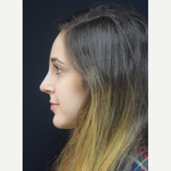 25-34 year old woman treated with Rhinoplasty after 3724330