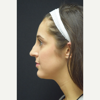 25-34 year old woman treated with Rhinoplasty before 3724330
