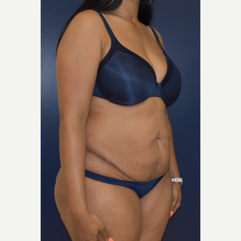 25-34 year old woman treated with Liposuction before 3844745