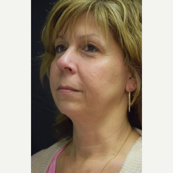 55-64 year old woman treated with Ultherapy before 3376358