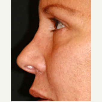 65-74 year old woman treated with fat transfer Nose Job before 3139571