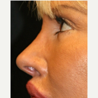 65-74 year old woman treated with fat transfer Nose Job after 3139571