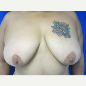 Breast Lift before 3055122