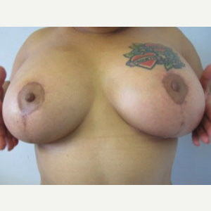 Breast Lift after 3055122