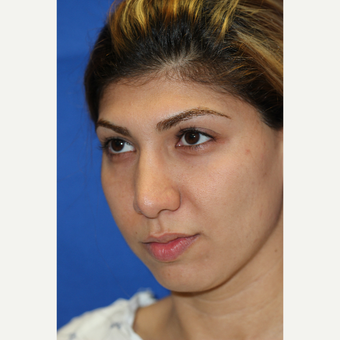 28 year old woman treated with Chin Implant and Rhinoplasty for facial balance before 3843971
