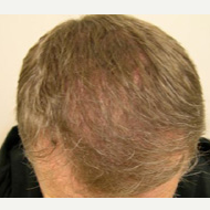 40 year old man treated with FUE Hair Transplant after 3763953