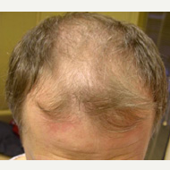 40 year old man treated with FUE Hair Transplant before 3763953