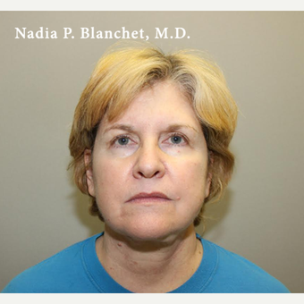 35-44 year old woman treated with Facelift before 3032715