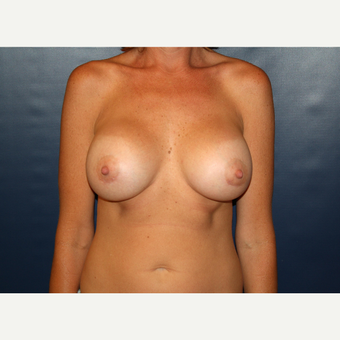 35-44 year old woman treated with Breast Augmentation after 3038726