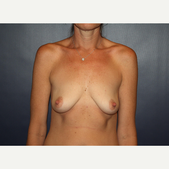 35-44 year old woman treated with Breast Augmentation before 3038726