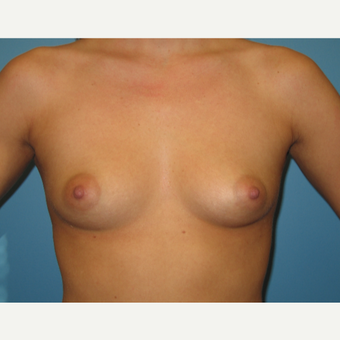 23 year old woman treated with Breast Augmentation before 3482701