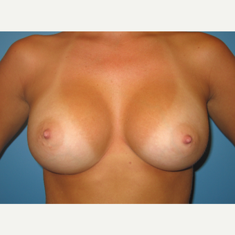 23 year old woman treated with Breast Augmentation after 3482701