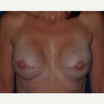 35-44 year old woman treated with Breast Reconstruction after 3849247