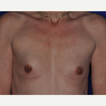 35-44 year old woman treated with Breast Reconstruction before 3849247