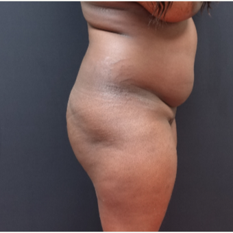 25-34 year old woman treated with Liposuction before 3363930