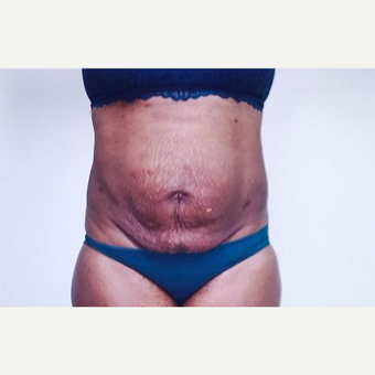 35-44 year old woman treated with Laser Liposuction after 3764291