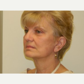 65-74 year old woman treated with Mini Lift, browlift and 4-Lid Blepharoplasty after 3264864