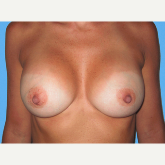Breast Augmentation after 3731602