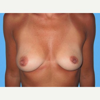 Breast Augmentation before 3731602