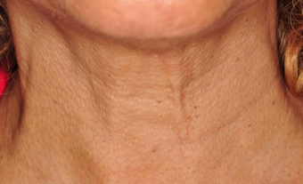 Thermage treatment for neck and jawline tightening