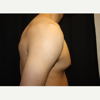 18-24 year old man treated with Male Breast Reduction before 3186303