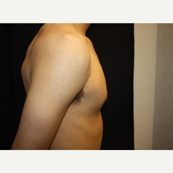18-24 year old man treated with Male Breast Reduction after 3186303