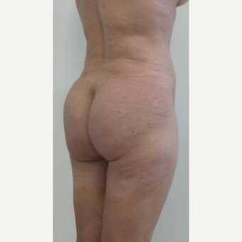 45-54 year old woman treated with Brazilian Butt Lift after 2813964