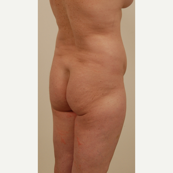 45-54 year old woman treated with Brazilian Butt Lift before 2813964