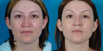 29-year-old woman treated with Rhinoplasty. before 3287951